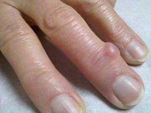 Лечение гигромы пальца и кисти рук