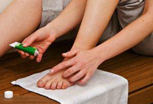 лечение грибка стопы мазью