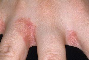 грибок кожи рук