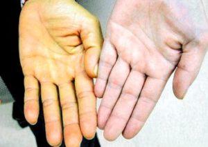 желтый оттенок рук при желтухе