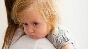 сыпь при кори у детей