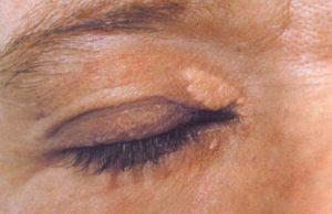 жировики под глазами