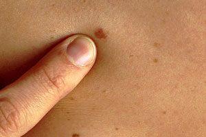 меланома на начальной стадии