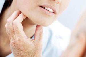 Причины и симптомы мононуклеоза