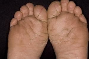 Чем лечить атопический дерматит у взрослых