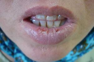 Пузырчатка - причины и фото болезни