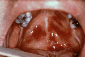 симптомы саркомы Капоши
