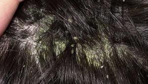 симптомы себореи кожи головы