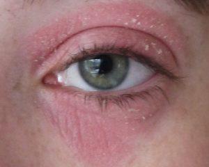 кожа вокруг глаз красная и шелушится