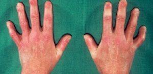 склеродермии на руках