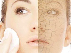 Основные причины очень сухой кожи