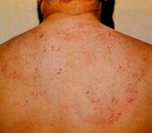 сыпь у больного спидом