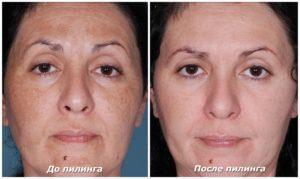 ультразвуковая чистка лица, фото до и после