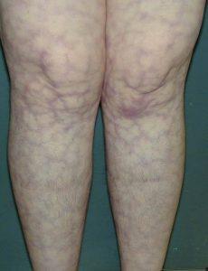 ливедо-васкулит на ногах