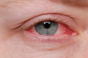 первые симптомы демодекоза век