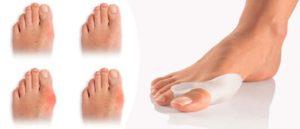 шишки на ногах под кожей