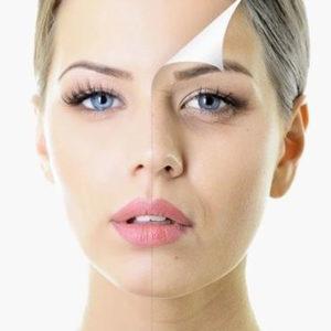 Как избавиться от гиперпигментации на лице