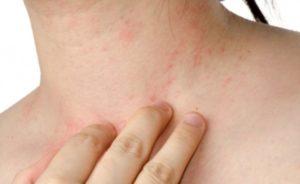 Что делать при аллергии на лекарства