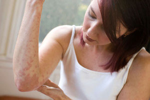 Симптомы атопических заболеваний