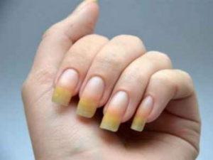 Как вылечить ониходистрофию ногтей