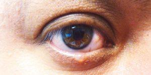 Проверенные заговоры на ячмень глаза