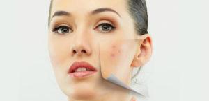 Какие органы отвечают за возникновение прыщей на лице