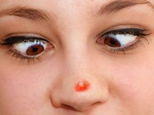 О чем говорит красное пятно на носу