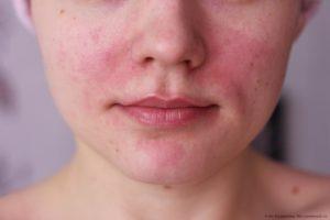 розовые угри на лице