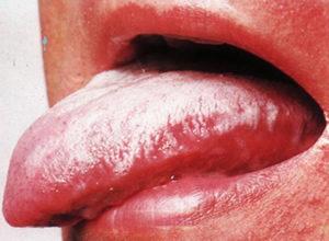 лейкоплакия полости рта на фото