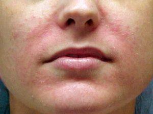 грибок на лице
