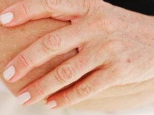 Как убрать пигментные пятна на руках