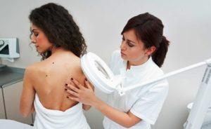 Симптомы и лечение цветного лишая у человека