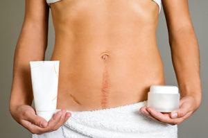 Методы удаления шрама после операции