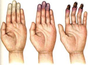 болезнь Рейно на руках