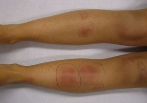Как вылечить узловатую эритему на ногах