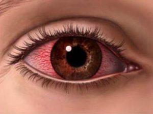 Лечение аллергии на веках глаз