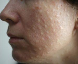 Лечение и причины папул на коже