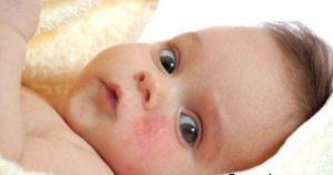 Признаки псориаза у детей
