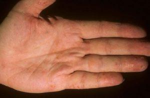Причины водянистой сыпи на руках
