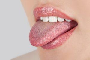 Симптомы рака языка на начальной стадия и лечение