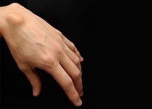 На руке образовалась шишка под кожей