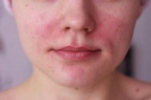 Причины возникновения красных пятен на лице