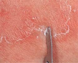 Как распознать признаки дерматофитии