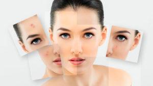 Как скрыть прыщи на лице без использования косметики