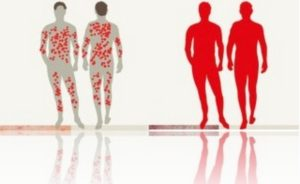 Признаки псориатической эритродермии на коже