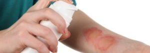 Причины и лечение эксфолиативного дерматита Риттера
