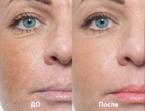 до и после мезотерапии лица