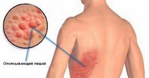 Как лечить постгерпетическую невралогию в домашних условиях
