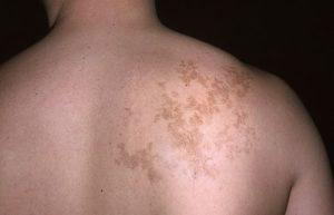 Лечение волосатого невуса Беккера