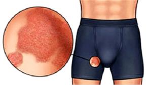 Признаки и лечение пахового дерматита у мужчин